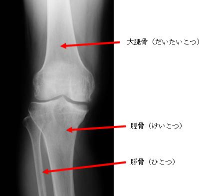 軽度の膝関節症