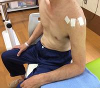 関節鏡下腱板修復術後とは