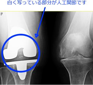 人工膝関節全置換術とは