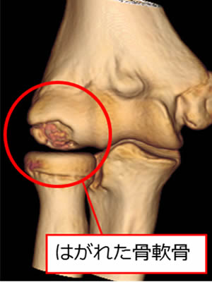 肘関節モザイクプラスティーとは